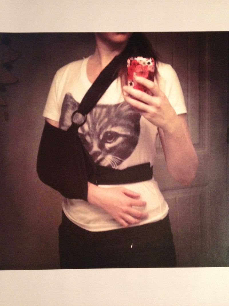 Hurt collarbone